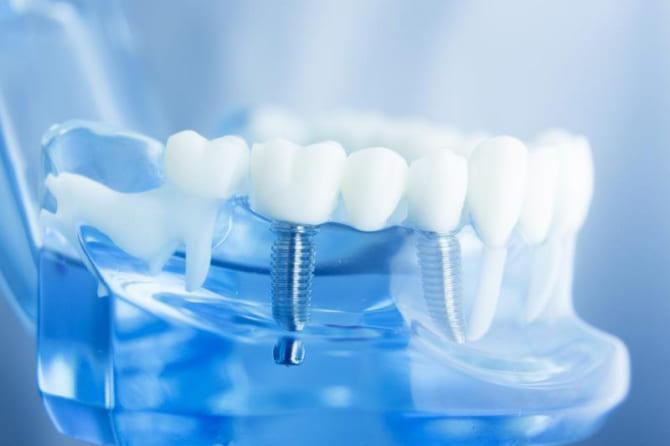 Công nghệ trồng răng Implant là gì? Vì sao nên lựa chọn công nghệ này?