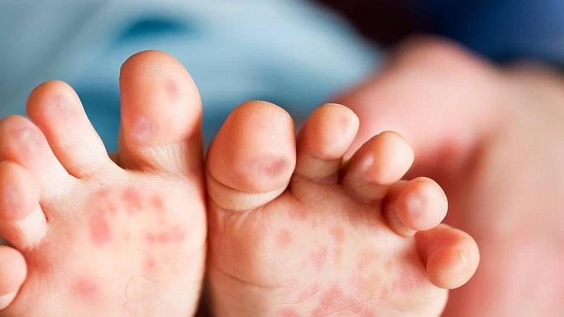Triệu chứng bệnh tay-chân-miệng