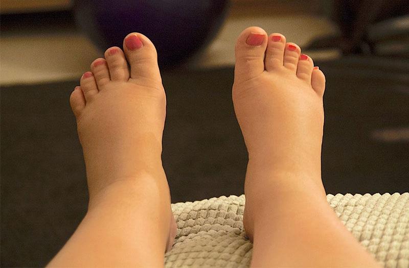 Nguyên nhân mẹ bầu thường bị phù chân trong quá trình mang thai?